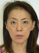 No.006 目のくまの施術内容と症例写真