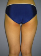 No.003 太もも全周 お尻 膝内側の施術内容と症例写真