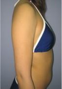 No.008 二の腕 太もも全周 お尻 腰(背側)の施術内容と症例写真