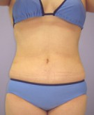 No.010 上腹部 下腹部 腰の施術内容と症例写真