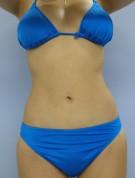No.032 上下腹 腰の施術内容と症例写真