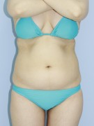 No.051 上下腹 腰の施術内容と症例写真