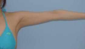 No.058 二の腕・付け根の施術内容と症例写真