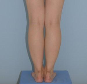 下腿の脂肪吸引 1ヶ月 28歳 155cm 53kg