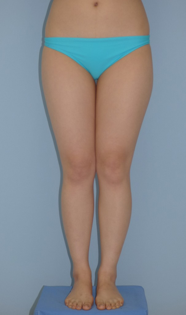太ももの脂肪吸引 25歳 166cm 58kg