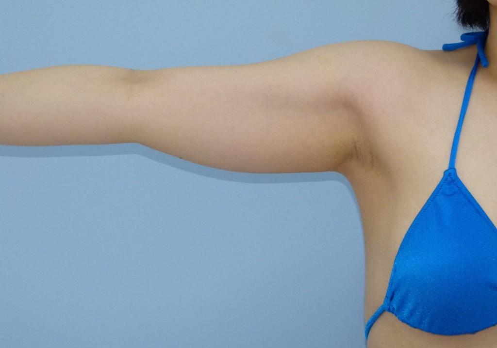 二の腕・付け根の脂肪吸引 29歳 158cm 57kg