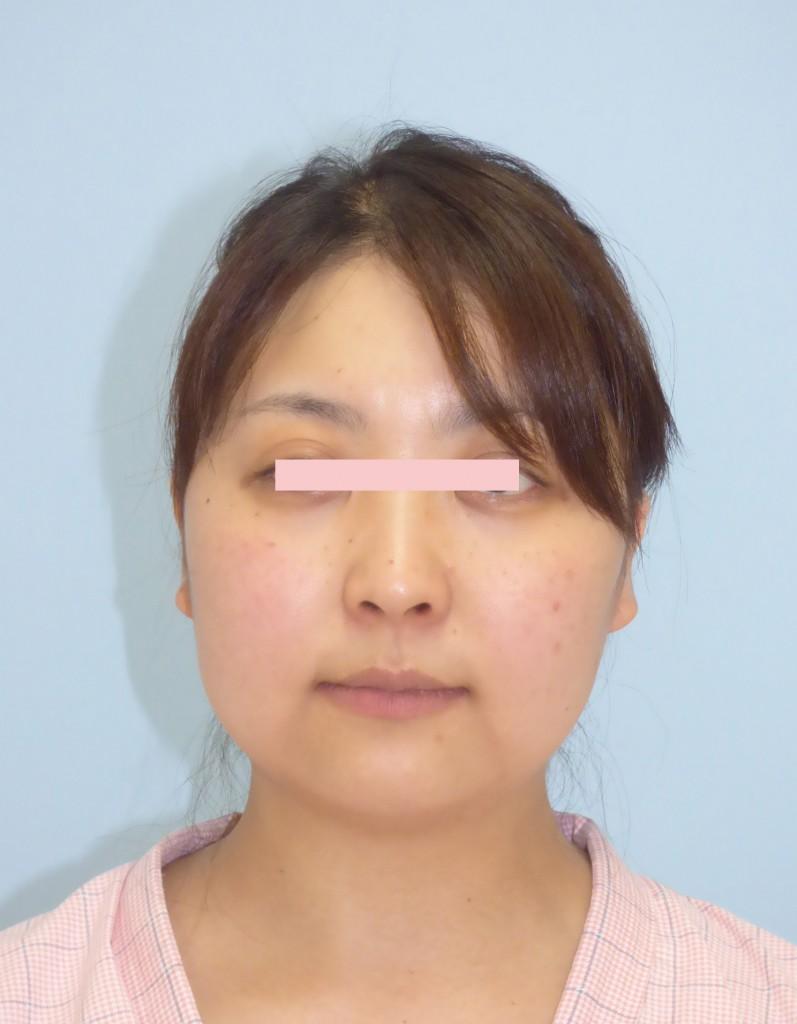 顔の脂肪吸引 31歳 158cm 61.5kg