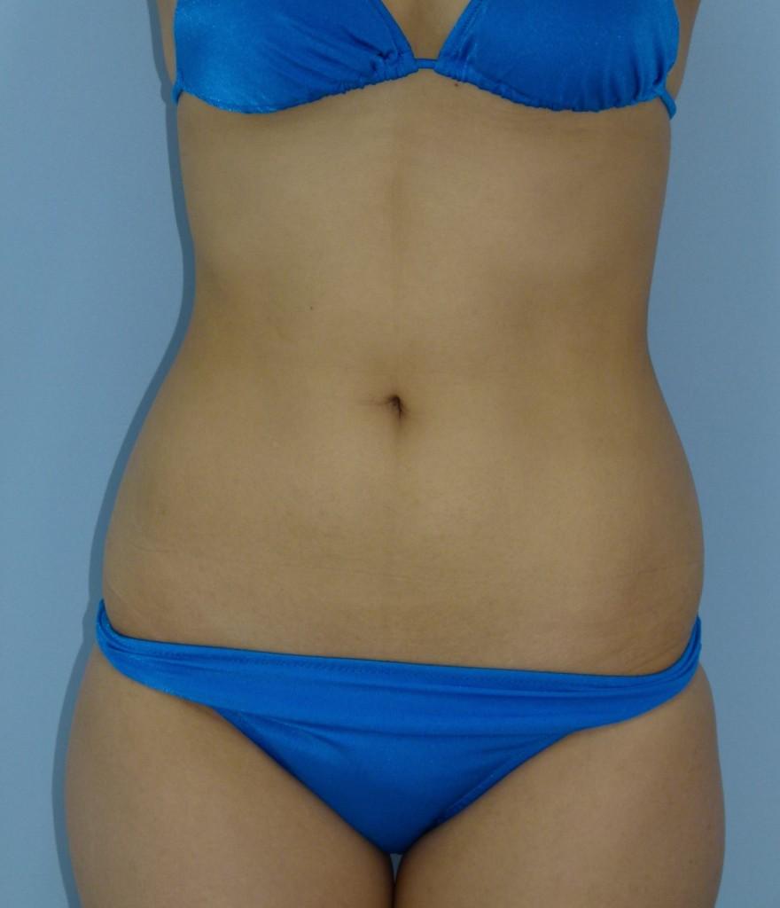 お腹の脂肪吸引 27歳 167cm 59kg