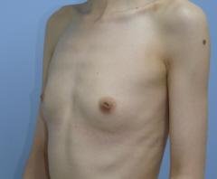 豊胸手術 41歳 161cm 43kg