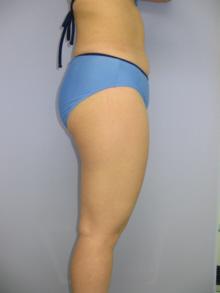 太もも前面と後面の脂肪吸引 26歳 152cm 59kg