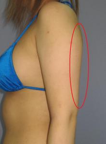 二の腕全周の脂肪吸引