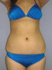 お腹全周の脂肪吸引