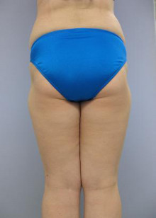大量脂肪吸引はどうやるのか?:2