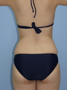 脂肪吸引:内出血について