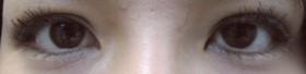 No.005 部分切開法+脱脂術の施術内容と症例写真