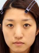 No.026 目のくまの施術内容と症例写真