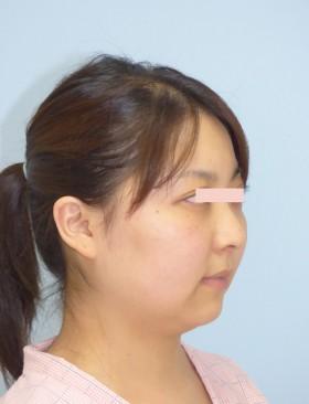 No.003 顔の脂肪吸引の施術内容と症例写真