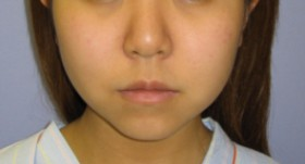 No.001 顔の脂肪吸引の施術内容と症例写真