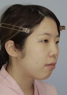 No.002 顔の脂肪吸引の施術内容と症例写真