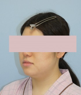 No.004 顔の脂肪吸引の施術内容と症例写真