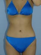 No.023 上下腹 腰の施術内容と症例写真