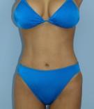 No.040 上下腹 腰の施術内容と症例写真