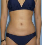No.045 上下腹 腰の施術内容と症例写真