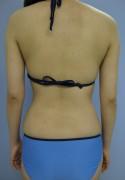 No.046 二の腕 付け根の施術内容と症例写真