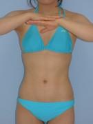 No.059 上下腹 腰の施術内容と症例写真