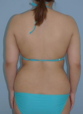 No.063 二の腕 付け根の他院術後再脂肪吸引の施術内容と症例写真