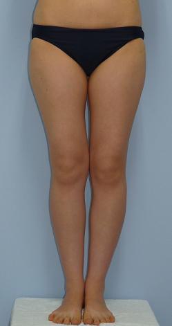 太もも内側の脂肪吸引 25歳 157cm 46kg
