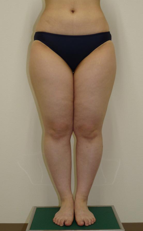 2回に分けて行った太もも全周の脂肪吸引 24歳 155cm 58kg