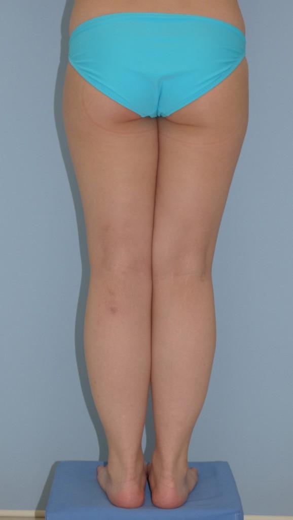 下腿の脂肪吸引 25歳 160cm 59kg