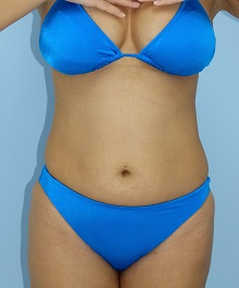 お腹 31歳 157cm 51kg