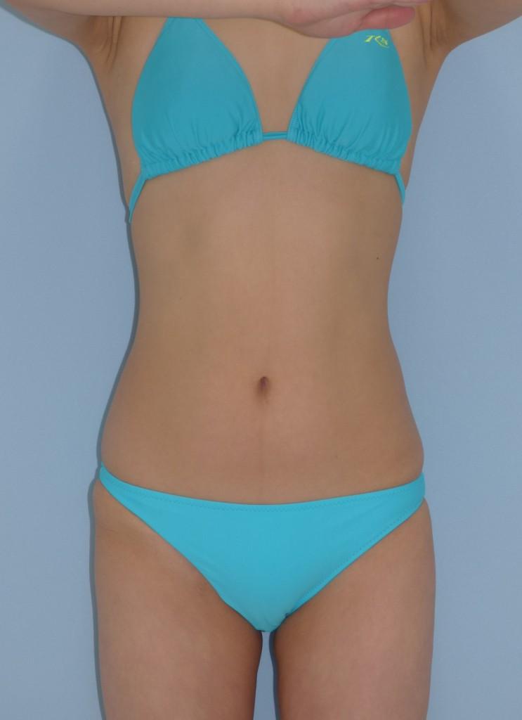 お腹 28歳 女性 164cm 54kg