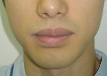唇の整形:上唇を薄く