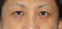 上まぶたのたるみ取り:眉毛下皮膚切除