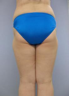 大量脂肪吸引はどうやるのか:1