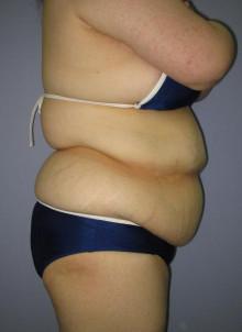 脂肪吸引はなぜたるまないのか?:2