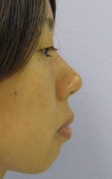 鼻先縮小&延長+I型プロテーゼ