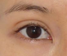 当院人気手術:垂れ目形成 術後1週間