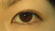 垂れ目(でか目)形成&目尻切開 術後1週間