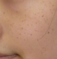 肌の治療:シミ・そばかす