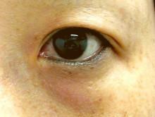 目のくま治療:ライトアイズウルトラ(light EYES ULTRA)