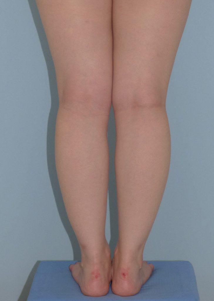 下腿の脂肪吸引 4ヶ月 25歳 155cm 56kg