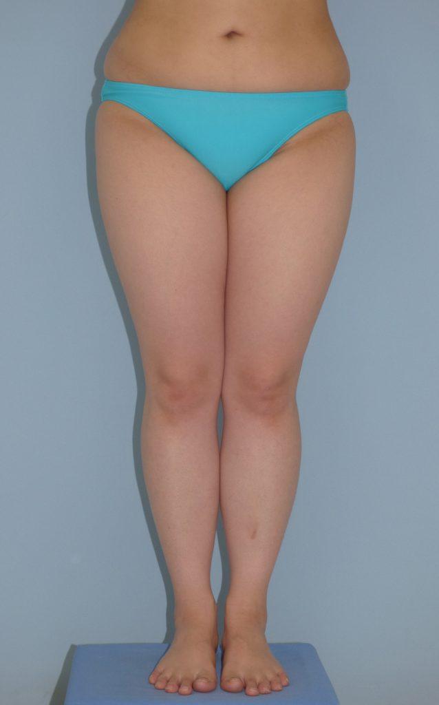 太もも前面・内側・膝の脂肪吸引 26歳 151cm 56kg