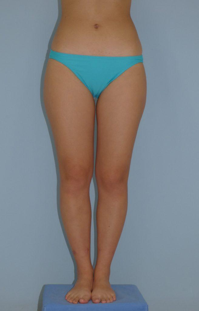 太もも内側・膝・外側の脂肪吸引 20歳 159cm 51kg