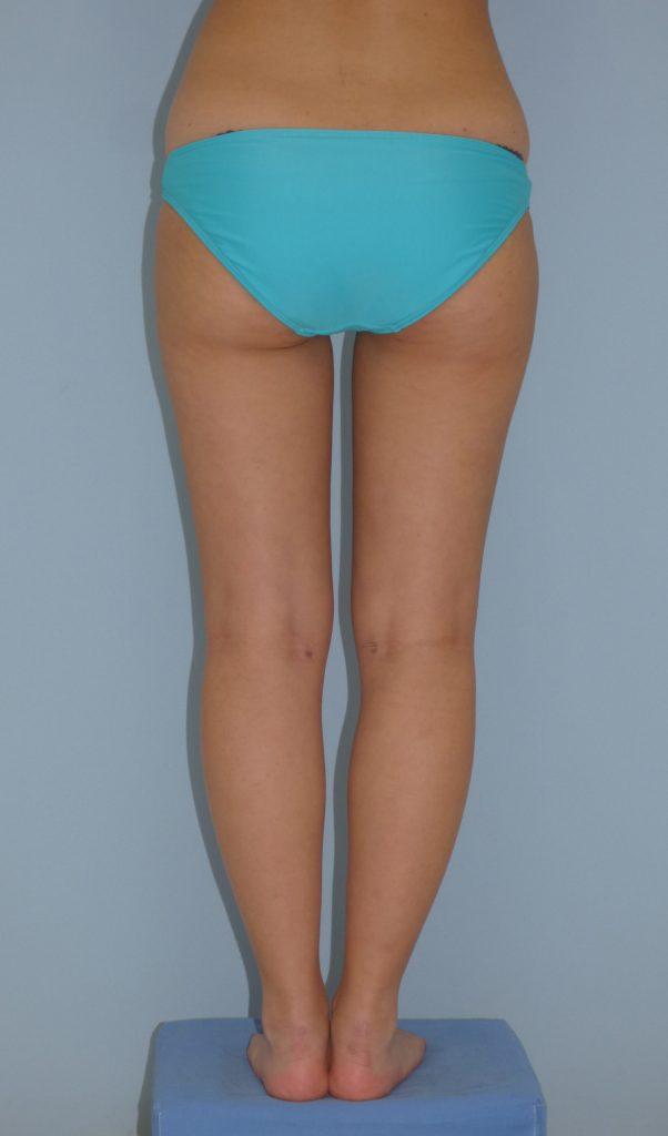 太もも - 脂肪吸引 症例写真(手術後1.5ヵ月)(後面)