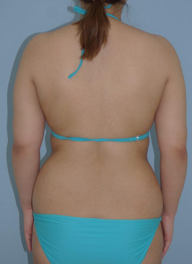 二の腕 - 脂肪吸引 症例写真(手術前)(後面)
