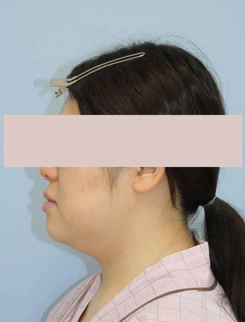 顔 - 脂肪吸引 症例写真(手術前)(横)